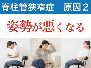 脊柱管狭窄症の二番目の原因は姿勢が悪くなること